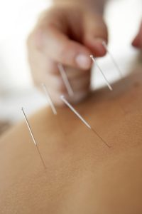 Therapist performing acupuncture
